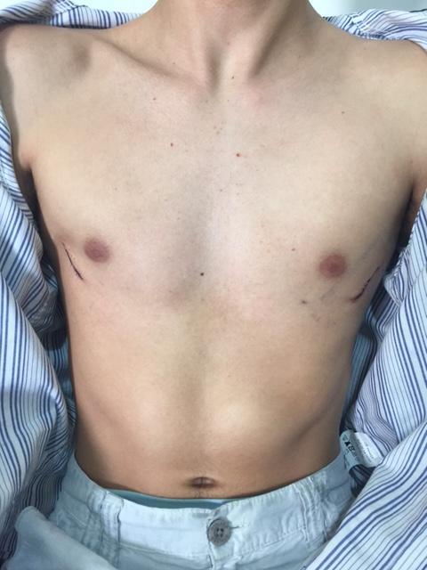 Depois da cirurgia